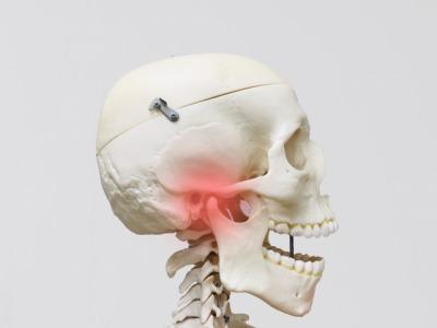 顎関節症骨.jpg