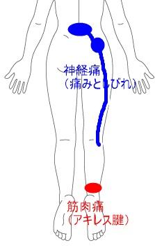 人体イラスト-女性.jpg