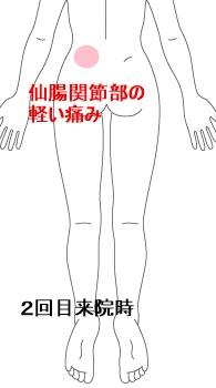 症例イラスト2-b.jpg