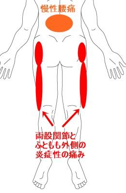 症例イラスト5.jpg