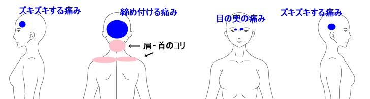 症例イラスト8.jpg