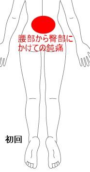症例イラスト-2-A.jpg