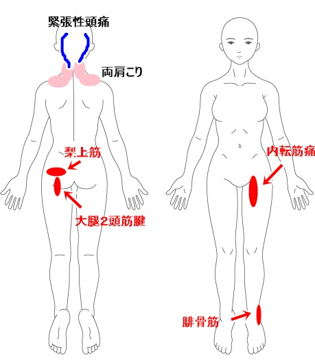 症例イラスト4.jpg
