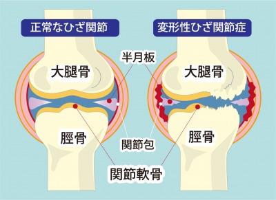 変形性膝関節説明イラスト.jpg