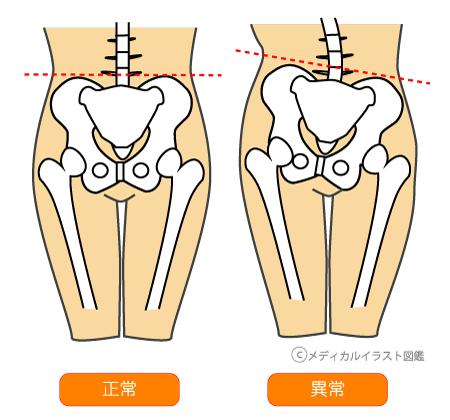 股関節 坐骨 神経痛